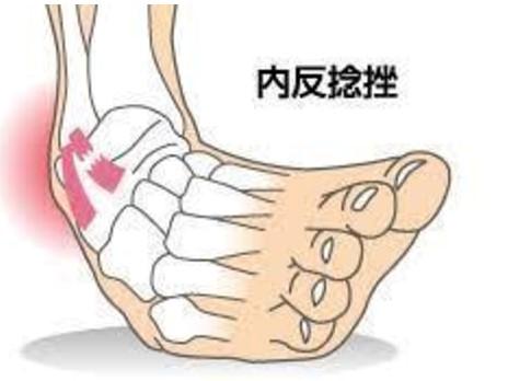 損傷 二分 靭帯 「二分靭帯」の損傷。足首を捻って足の甲の外側が腫れた!